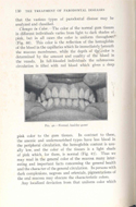 Oral Hygiene and the Treatment of Parodontal Diseases by Russell W. Bunting